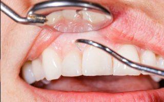 http://www.westoremdental.com/wp-content/uploads/2017/06/gum-disease-320x200.jpg