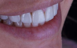 https://www.westoremdental.com/wp-content/uploads/2017/06/porcelain-veneers-320x200.jpg